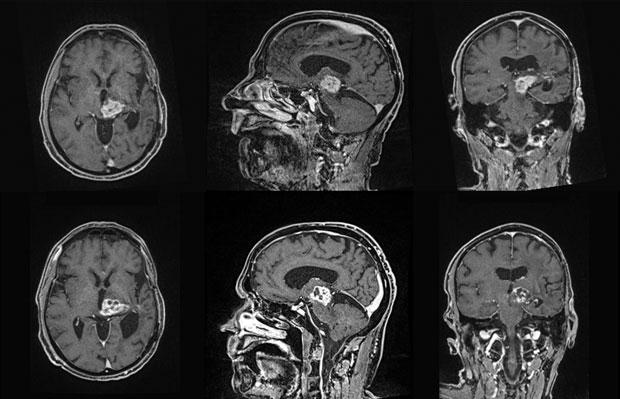 Узи головного мозга в гомеле